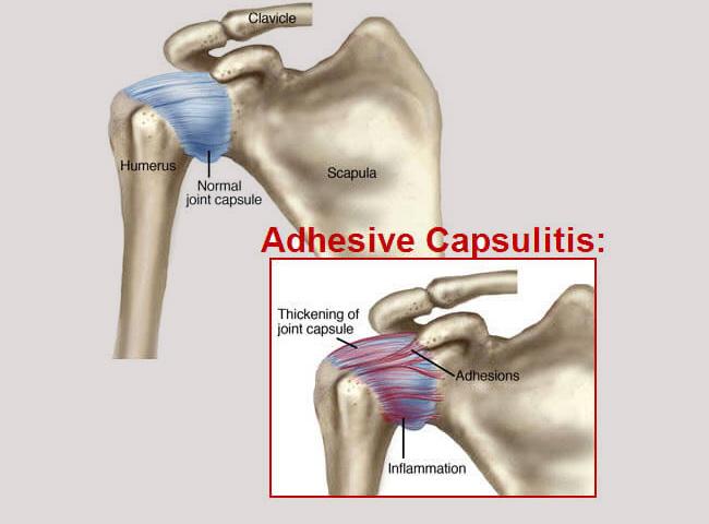 shoulder pain | Frozen shoulder | Shoulder pain treatment