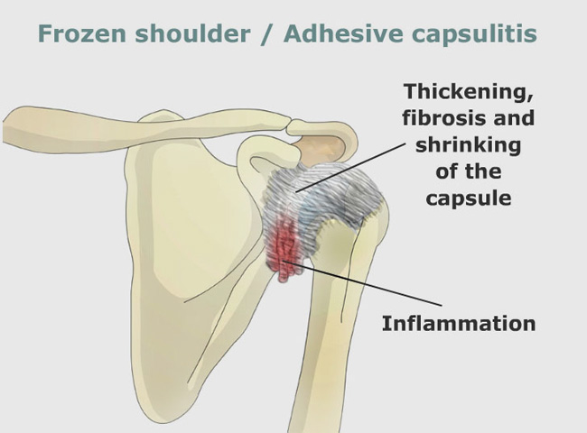 shoulder pain | Frozen shoulder | Shoulder pain treatment