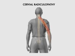 Neck pain - cervical pain - symptoms - Ashhok vihar