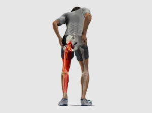 sciatica pain in legs causing tingling numbness